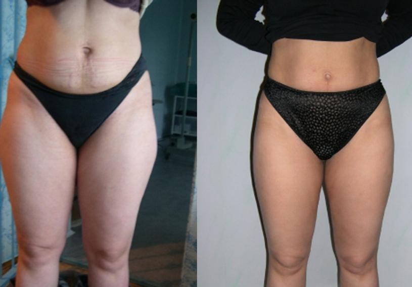 целлюлит до и после похудения