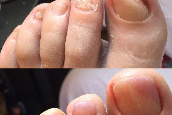 Протезирование ногтей ног в «Виктомед»
